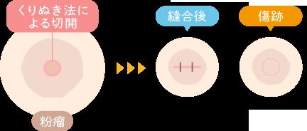 〜当院の粉瘤手術『くりぬき法』〜